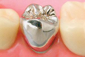銀歯が重宝された理由とは?
